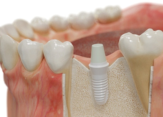 Model of zirconia implant post inserted into lower jaw