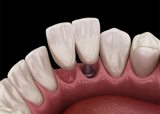 An implant for two missing teeth