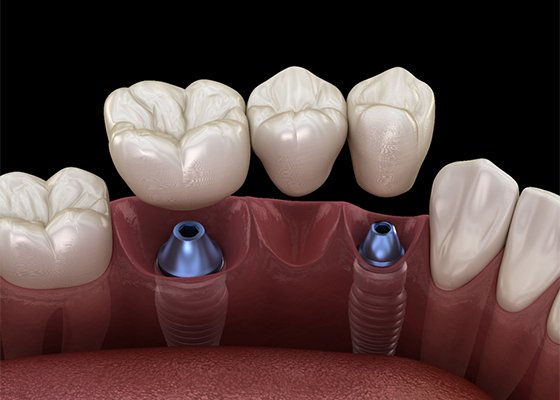 An implant bridge