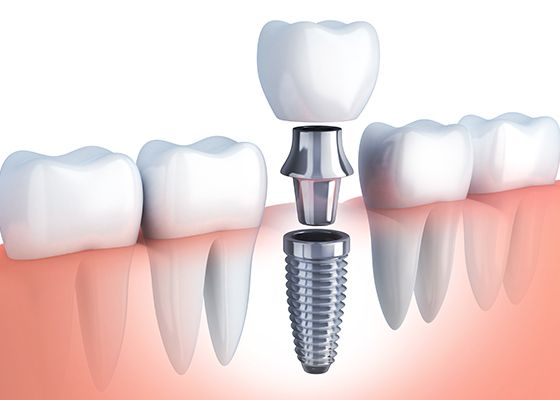 illustration of single implant