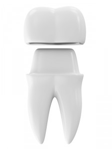 Get a dental crown in Annapolis in one day with Goodman Dental Group.