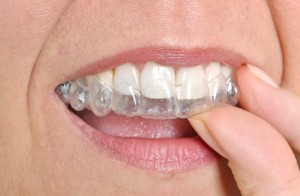 invisalign in annapolis is a perfect gift