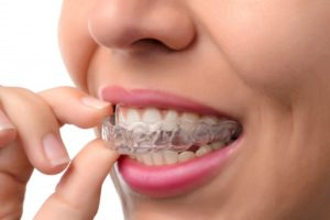woman smiling inserting Invisalign aligners