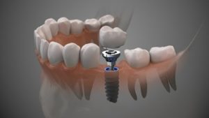 3D drawing of a dental implant