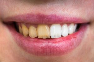 Teeth whitening results from cosmetic dentist.