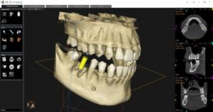 a 3D image taken with a CBCT scanner